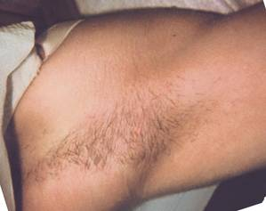 Under Arm Hair Before