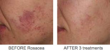 Rosacea 1 Before and After