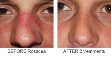 Rosacea 2 Before and After