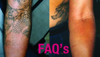 Tattoo laser FAQ's