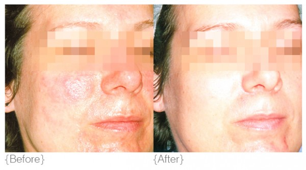 Redness Sensitivity Before and After