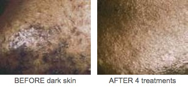 Dark Skin Before And After
