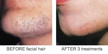 Facial Hair Removal Beofre And After