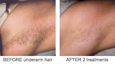 Underarm Hair Before And After