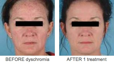 Dyschromia Defore and After