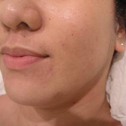 Acne Breakouts Pimples Treatment After