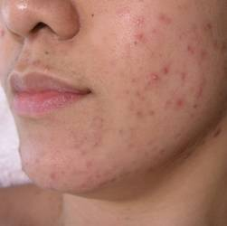 Acne Breakouts Pimples Treatment Before