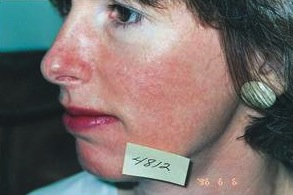 Rosacea Sensitive Skin Red Veins After