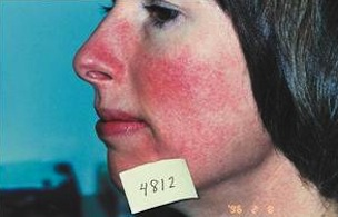 Rosacea Sensitive Skin Red Veins Before