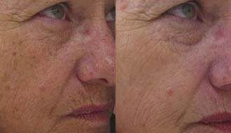 IPL Skin Rejuvenation About